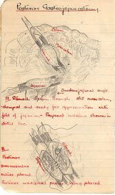 Operating Theatre notes in a small black diary, book, 1933